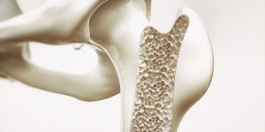Genetic Prerequisites For Osteoporosis